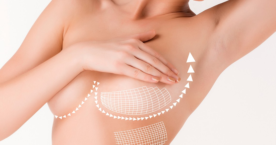 Breast Augmentation & Lift Bangkok