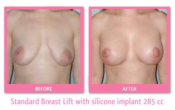 breast-lift-and-implant-285-cc