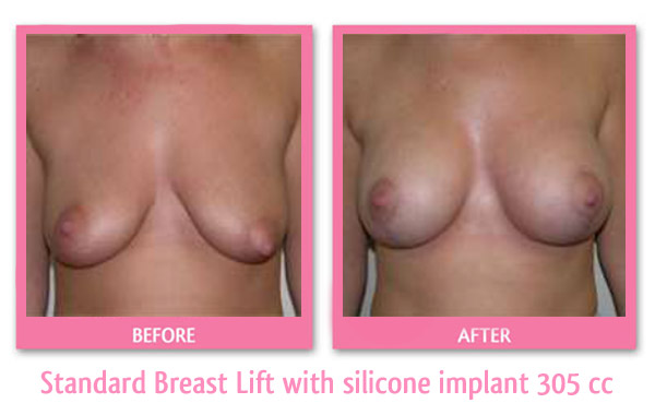breast-lift-and-implant-305-cc