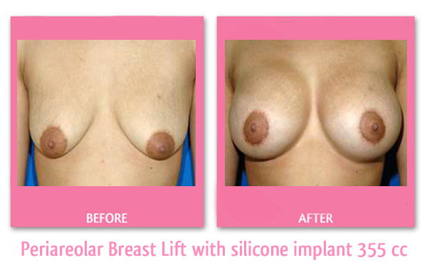 breast-lift-and-implant-355-cc