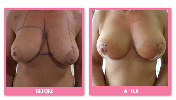 breast-lift-before-&-after