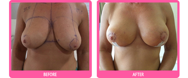breast lift before and after 800