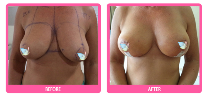 breast-lift-before-and-after