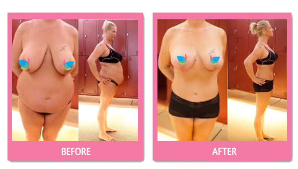 breast reduction thailand before after