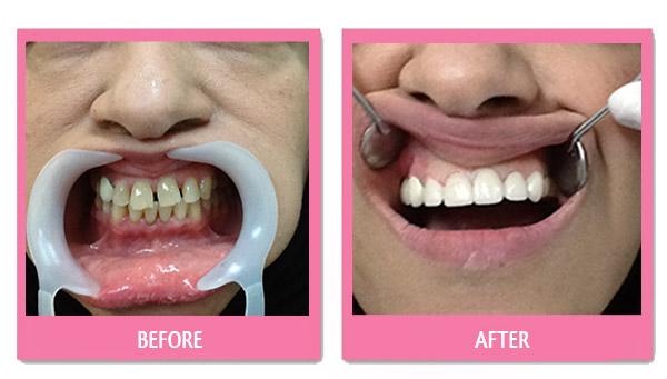 dental-before-and-after bangkok