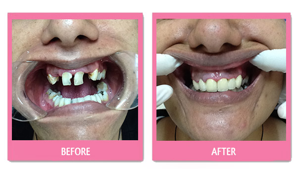dental-before-and-after implant