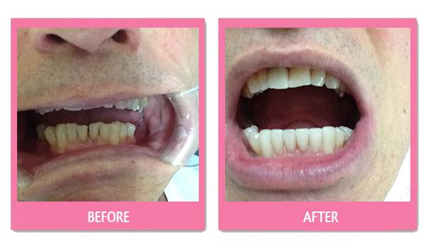 dental-before-and-after nice bangkok