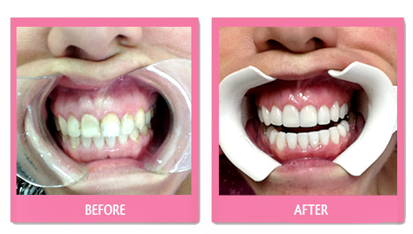 dental-before-and-after porcelain veneers bangkok