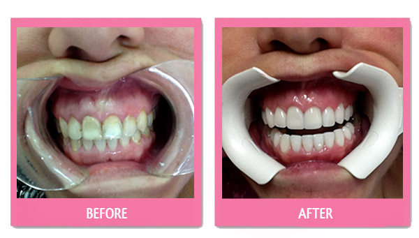 dental-before-and-after porcelain veneers cheap bangkok