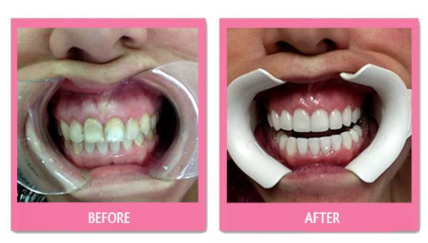 dental-before-and-after porcelain veneers cheap bangkok