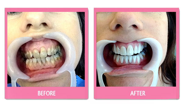 dental-before-and-after porcelain veneers thailand