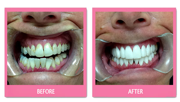 dental before and after thailand