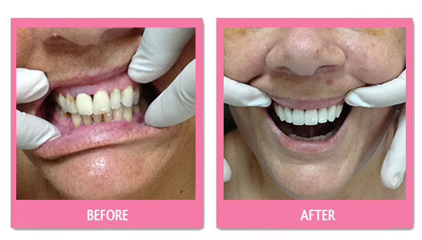 dental-before-and-after thailand