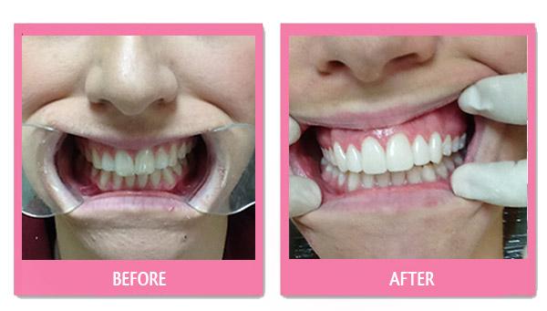 dental-before-and-after veneers bangkok