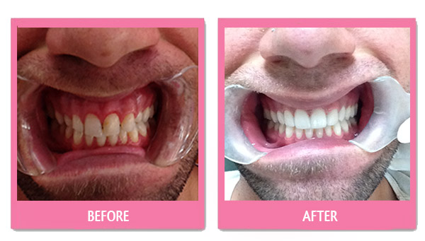 dental-before-and-after veneers thailand cheap