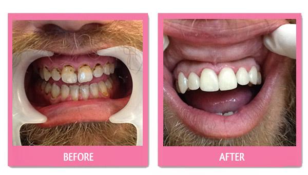 dental porcelain veneer thailand before and after