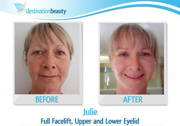 facelift-thailand-julie-before-and-after