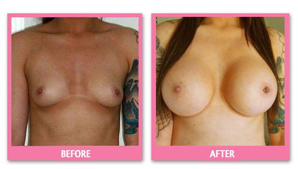 jacinta-breast-implant-before-and-after