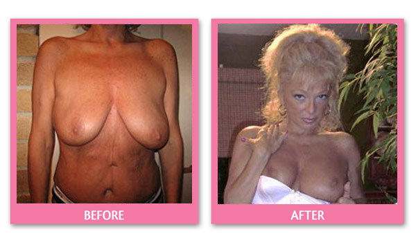 judith-breast-lift-before-and-after