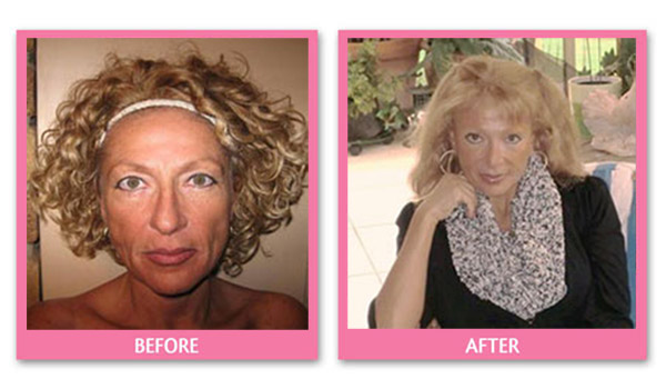 judith-face-lift-before-and-after