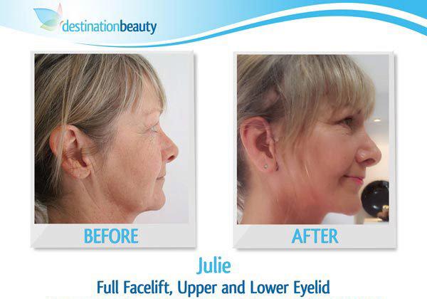 julie-facelift