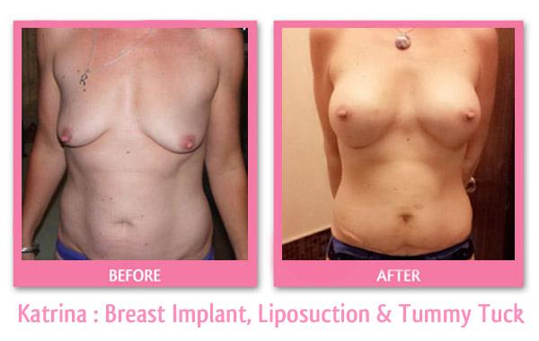 katrina-breast-implant-liposuction-tummy-tuck