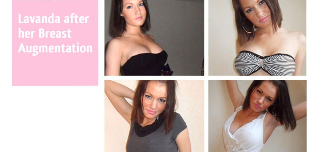 lavanda-breast-augmentation-after