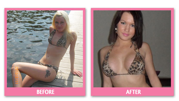 lavanda-breast-implant-before-and-after