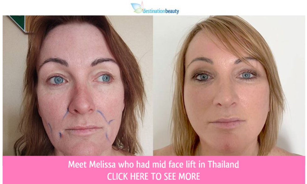 mid face lift thailand before and after