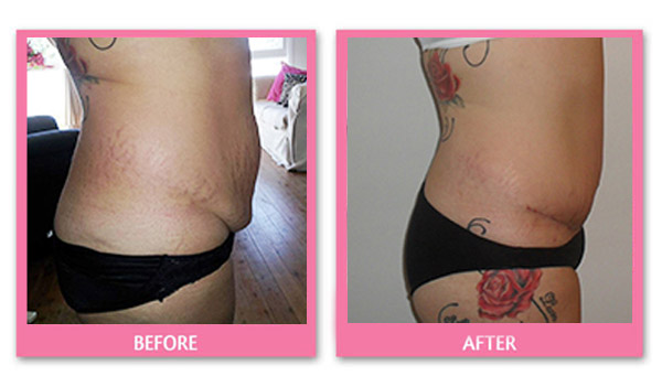 tummy-tuck-before-and-after