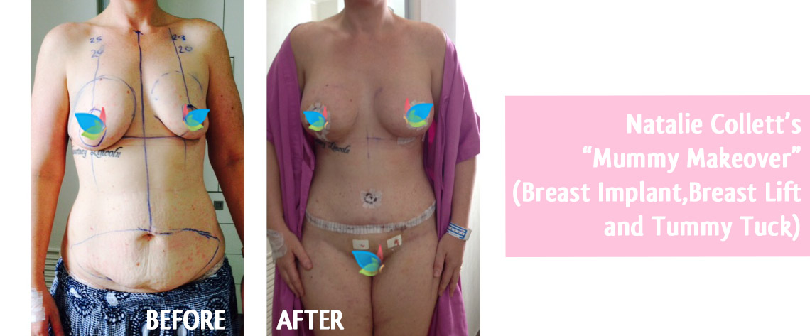 Natalie-Collett-Mummy-Makeover-before-after