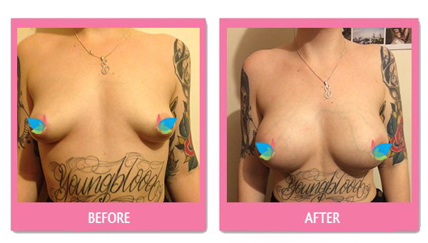 Emily-Irvine-before-after-breast-aug