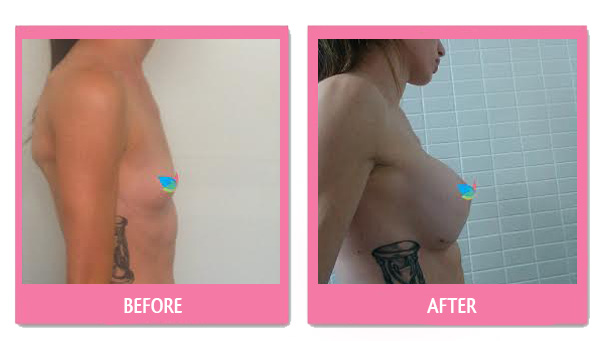 danii-before-and-after-breast-implant-bangkok