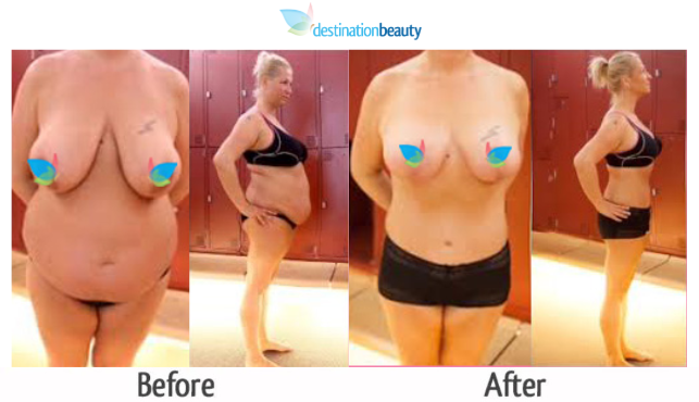 breast reduction and tummy tuck thailand