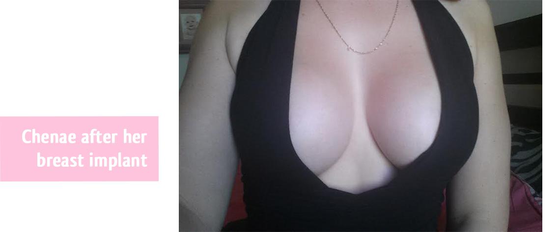 chenae-breat-implant-thailand