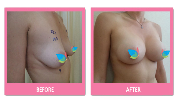 before after Breast Augmentation with Dr. Kasemsak