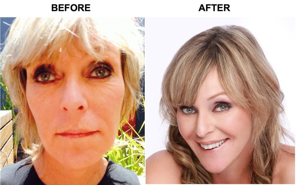 sharon before after facelift