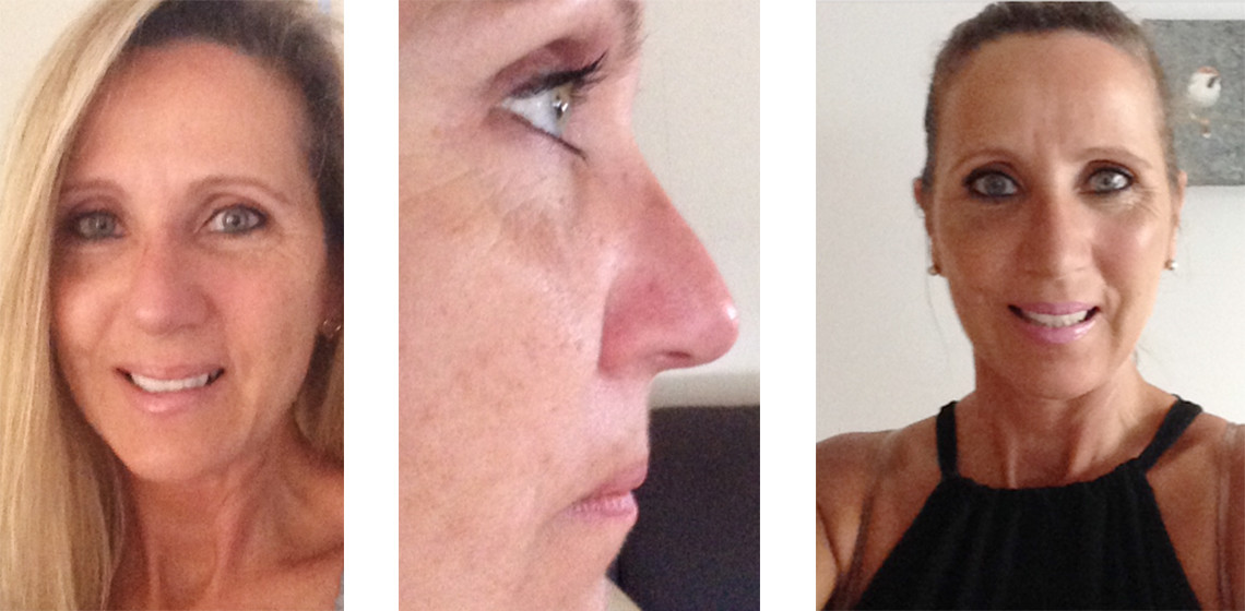 Grace Rhinoplasty Thailand with Dr. Montien