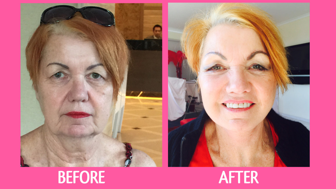 Mary's Full Face Lift and Eyelid Surgery with Dr. Narongdej