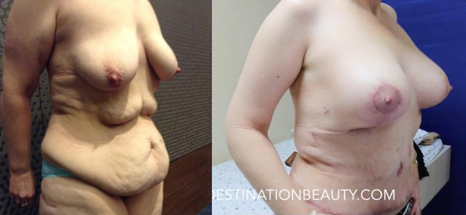 before-after-rachael tummy tuck breast lift augmentation