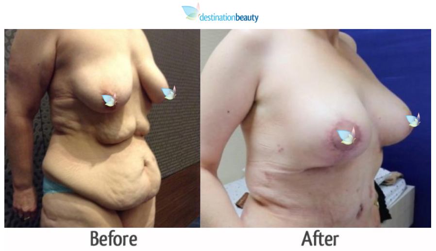breast augmentation with lift and extended tummy tuck thailand