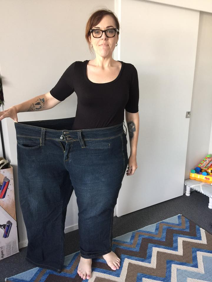 Anita's Tummy Tuck and Arm Lift After 100 kg Weight Loss