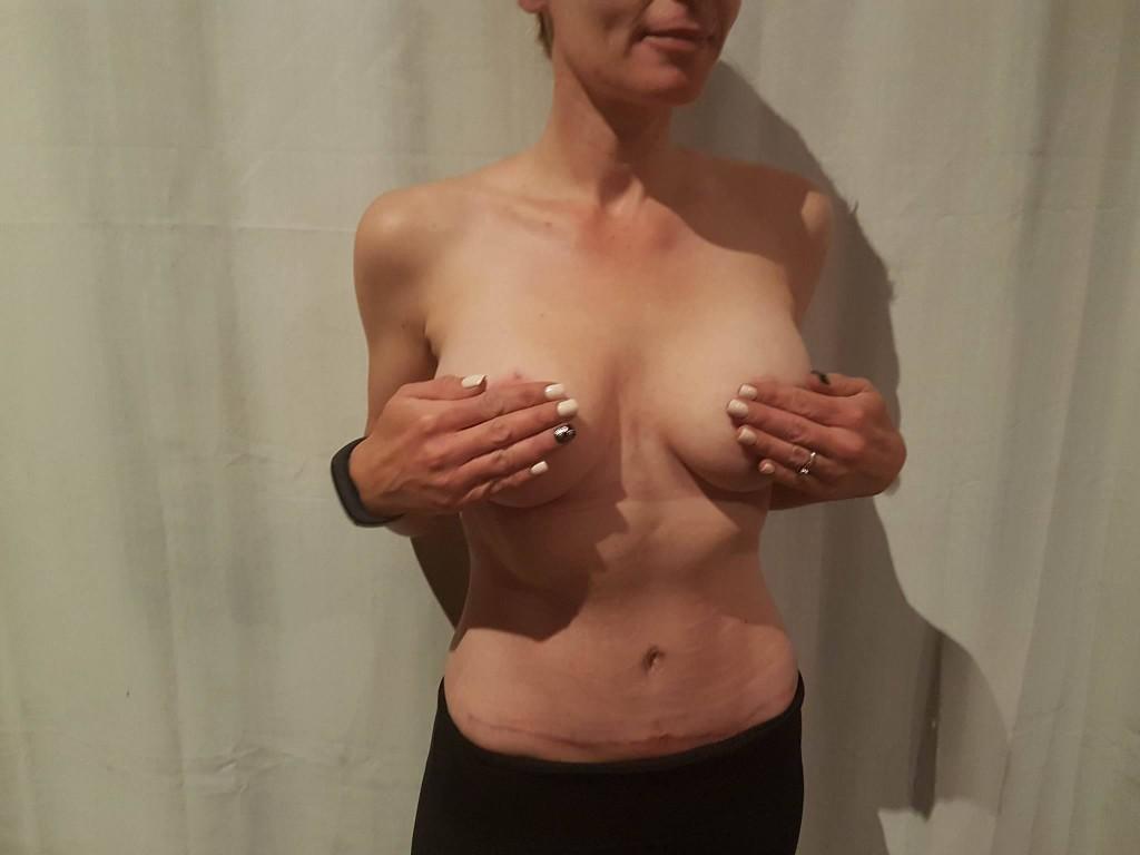 destination beauty after pictures breast lift augmentation