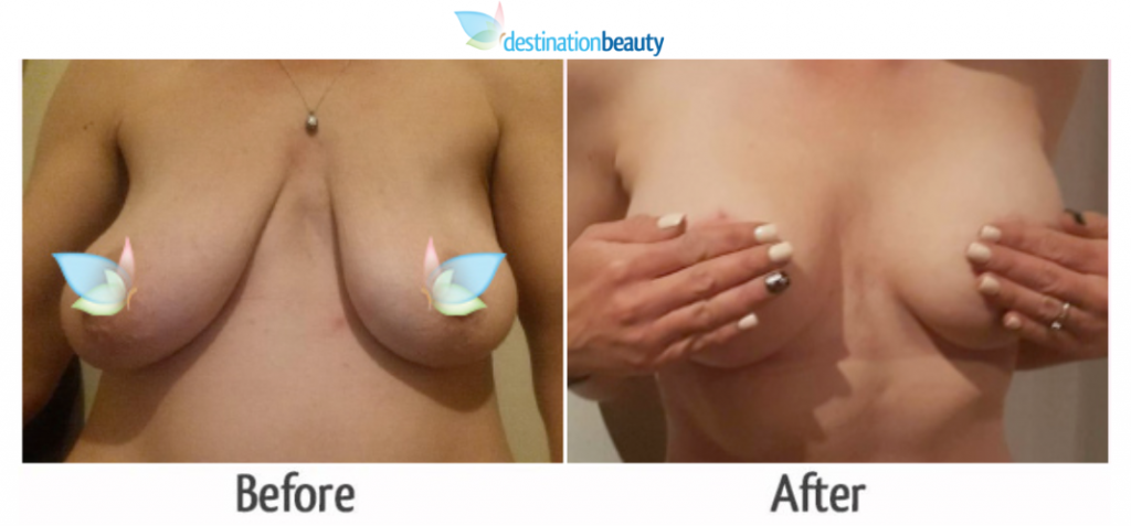 breast augmentation with lift thailand 2