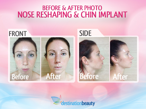 Nose_Reshaping_Dr.Rungkit