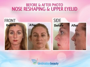 Nose_Reshaping_Upper_Eyelid