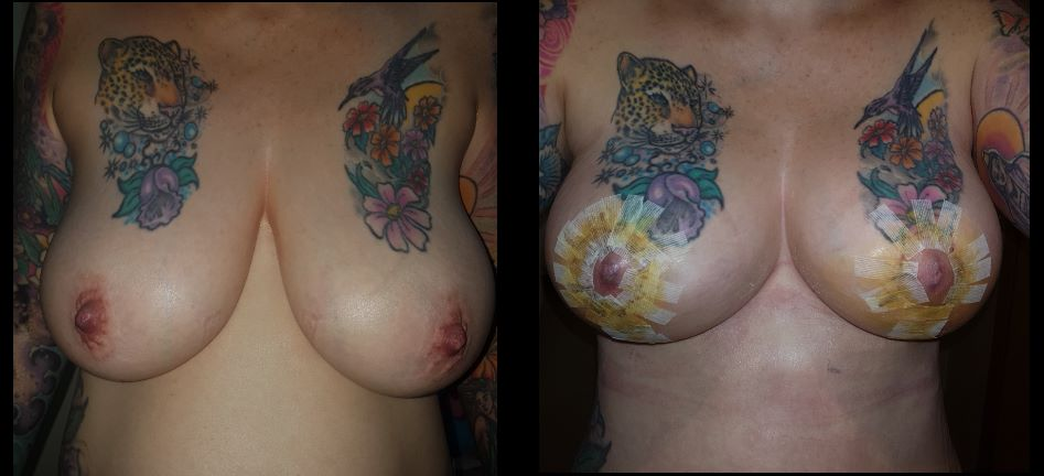 dr kasemsak before after breast lift