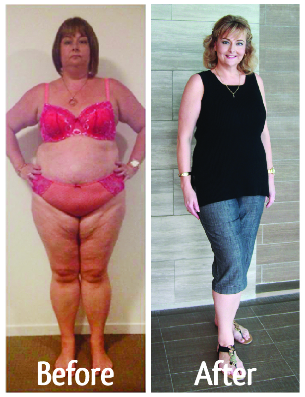 michelle before after gastric sleeve thailand