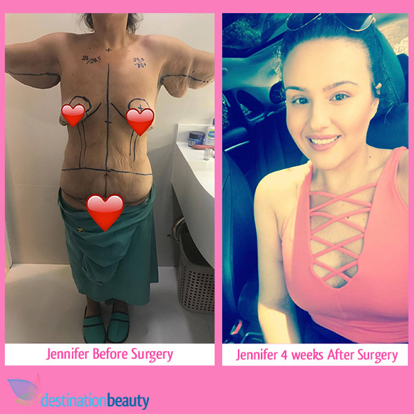 jennifer-before-after-breast-tummy-tuck-thailand