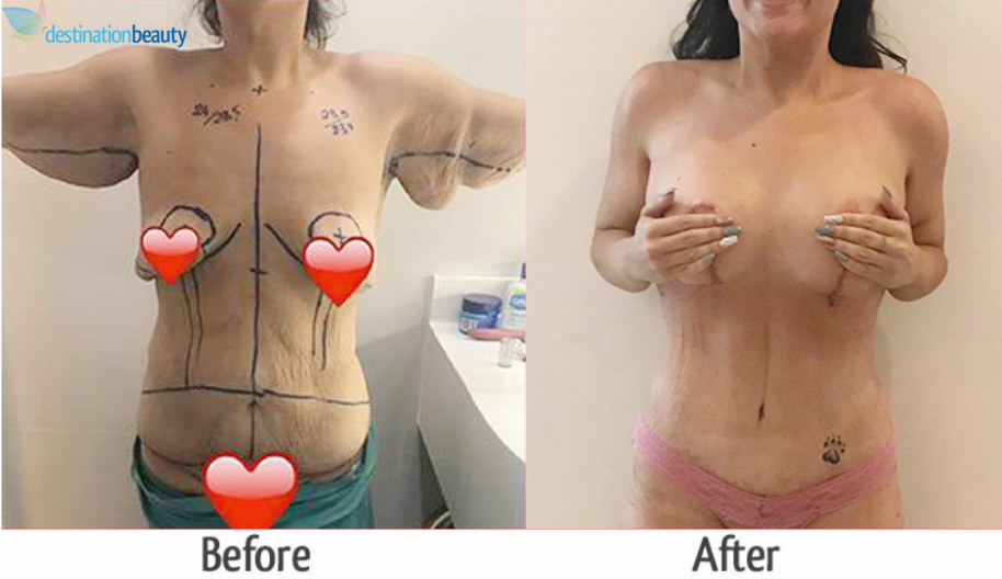 skin removal surgery thailand
